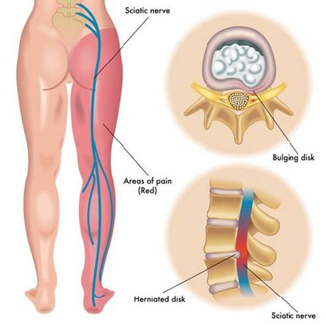 Cure Health Cure Sciatica By Naturopathy Treatment