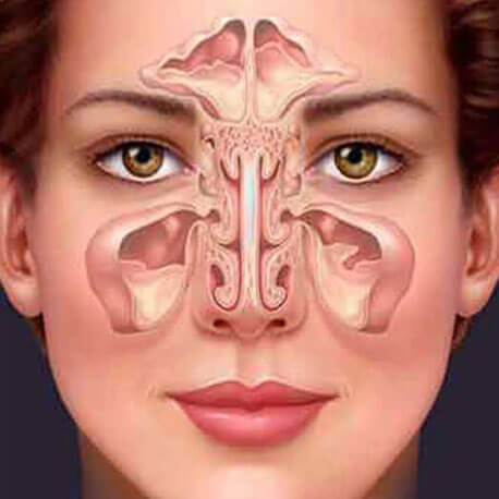 Cure Health Cure Sinusitis By Naturopathy Treatment