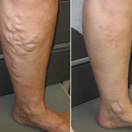 Cure Health Cure Varicose-Veins By Naturopathy Treatment